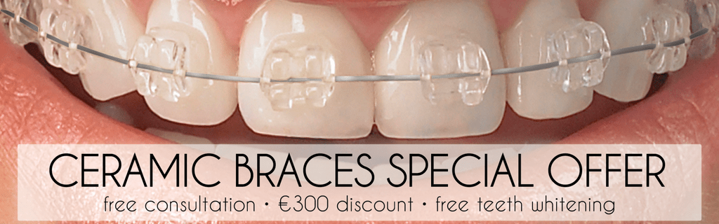 Ceramic Braces Special Offer Past Offer Newpark Clinic